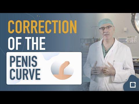 Ce să facă în cazul în care diagnosticat cu adenom de prostata