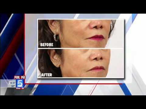 Injectable Fillers MicroPen Explanation Nowak San Diego