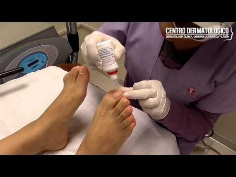 El cuidado de los calcetines al hongo de las uñas