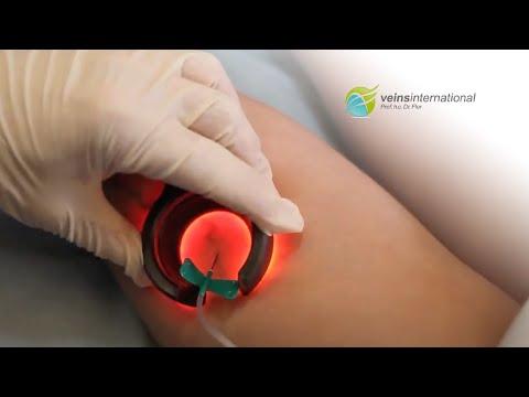 Phlebologist แพทย์ใน Sokolniki