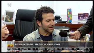 Μεταμόσχευση Μαλλιών: Φυσικό Αποτέλεσμα - Ηλίας Παλιουδάκης