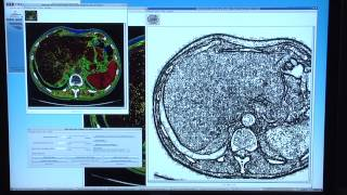 NASA Technology Finds Uses in Medical Imaging