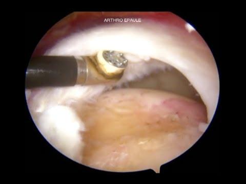Tratamentul artrozei genunchiului cu gelatină