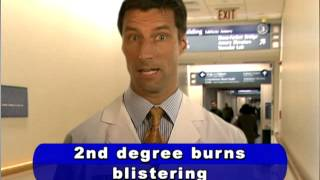 When is Emergency Treatment Needed for Burns?