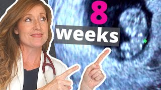 8 Week Ultrasound   PLUS how to Help with Morning Sickness