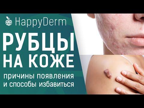 Рубцы на коже, почему появляются? Профилактика появления келоидных рубцов и как избавиться от шрамов