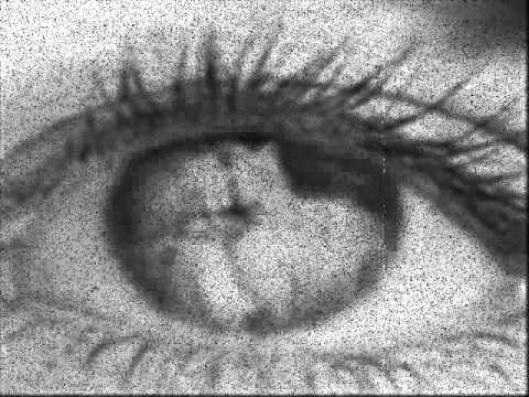 Vissza lehet-e állítani a látás tisztaságát