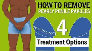 How to Remove Pearly Penile Papules - 4 Treatment Options