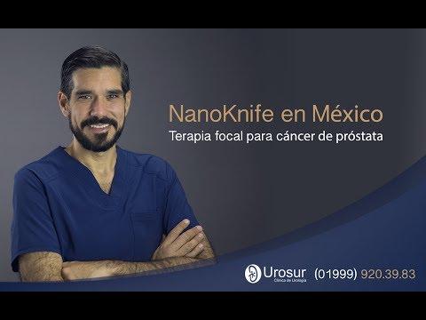 Curare il cancro alla prostata