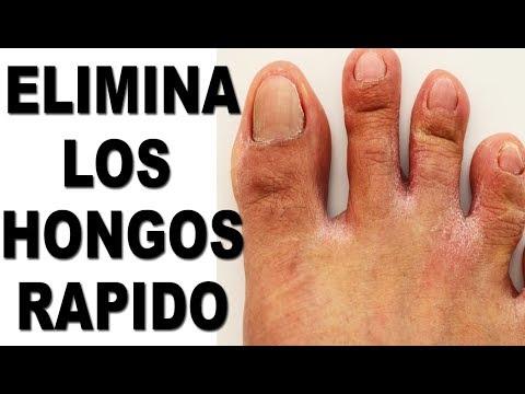 Como sanar la uña del pulgar en el pie
