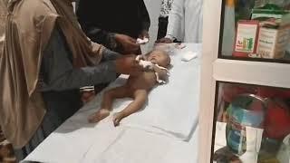 Cara Mengkafani Jenazah Bayi Laki-laki*