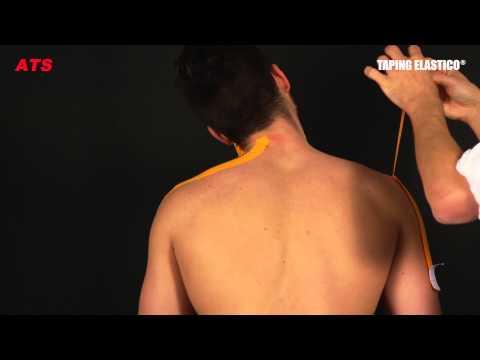 Impianto per il trattamento della colonna vertebrale