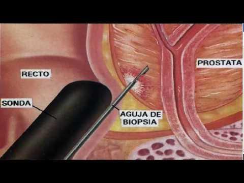 Frazione del cancro alla prostata