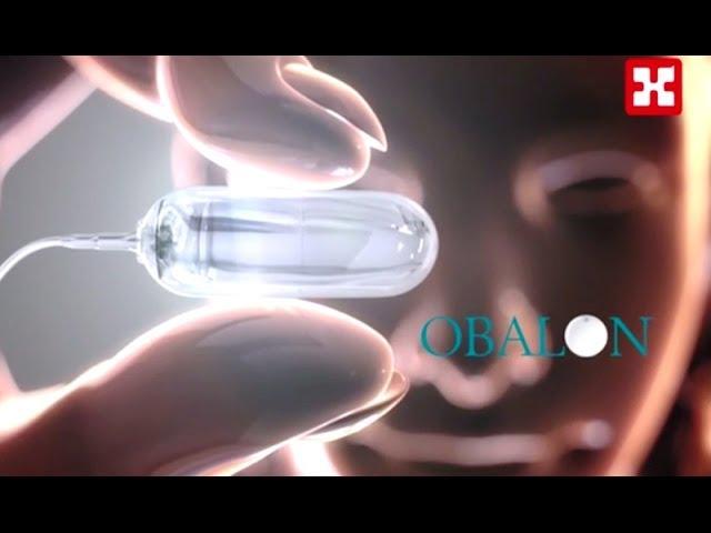 """الأوبالون """" OBALON"""" أحدث تقنية علاجية عالمية للقضاء على السمنة بدون جراحة"""