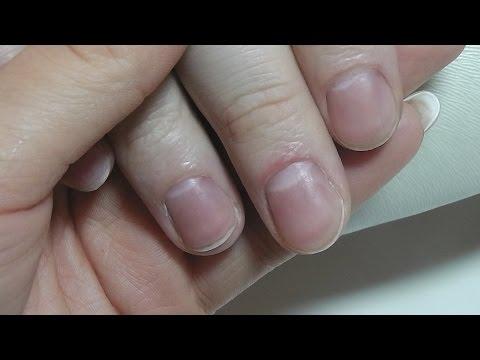 Die Salbe von gribka auf der Haut in der Leiste