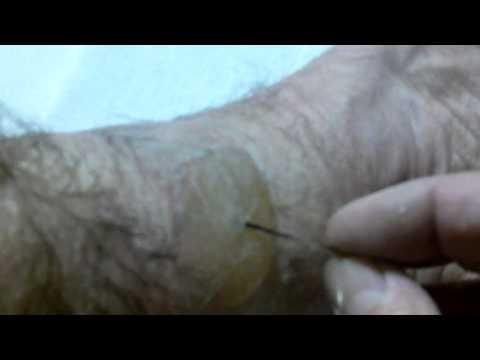 Plazmolifting a psoriasi