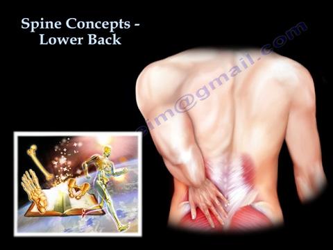 La curvatura di spina dorsale al bambino come trattare