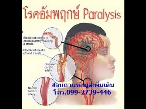 เส้นเลือดขอดและความดันโลหิตสูงมีความสัมพันธ์