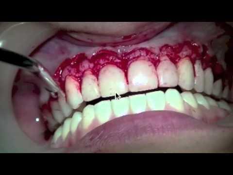 Wydłużenie korony zęba i zastosowanie licówek E-max