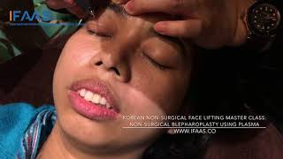 <Insights> Non-Surgical Blepharoplasty & Eyelid Tightening using Plasma by Dr Han-Jin Kwon