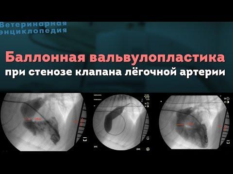 Баллонная вальвулопластика при стенозе клапана легочной артерии. Balloon Valvuloplasty in dog
