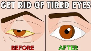 How to naturally get rid of tired eyes in 2 easy steps