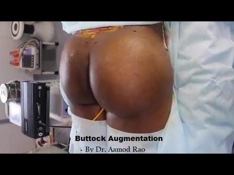 Diuretika zur Behandlung von Prostatitis