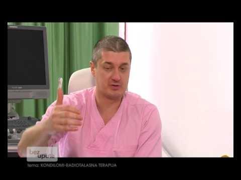 Papiloma krema zagreb