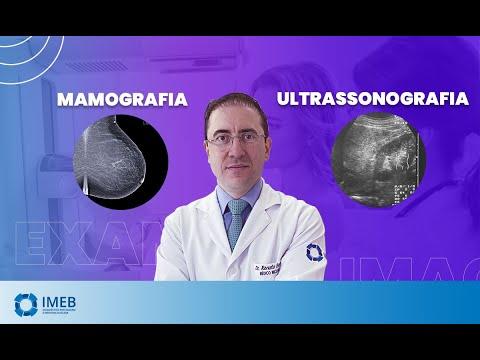 Tratament pt cancerul de plamani