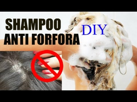 SHAMPOO ANTI FORFORA FAI DA TE!