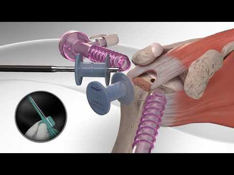 Восстановление надостной мышцы плеча