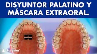 Tipos de ortodoncia - Disyuntor palatino y máscara extraoral de tracción ©