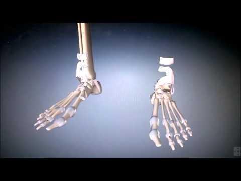 Cómo reparar ligamentos de la articulación del hombro después de una fractura