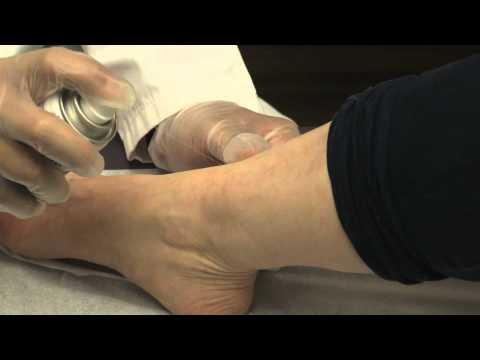 Ragioni di trombosi di unarteria vertebrale