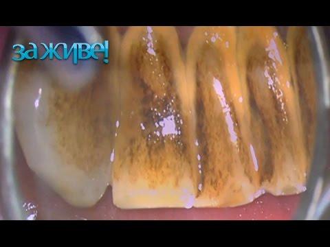 Как избавиться от зубного камня без стоматолога – За живе! Сезон 3. Выпуск 31 от 19.10.16