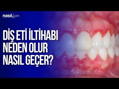 Diş Eti İltihabı Neden Olur Ve Nasıl Geçer? | Sağlık | Nasil.com