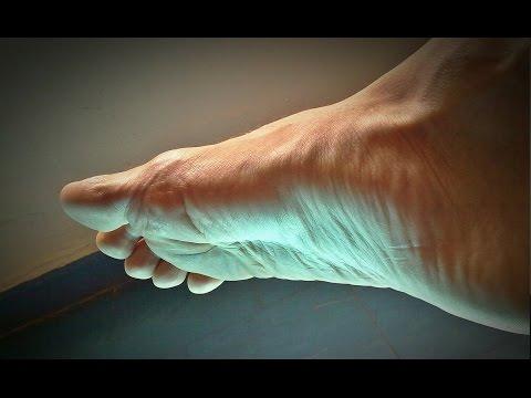 Die Valgusdeformation 1 Fingers des linken Fusses