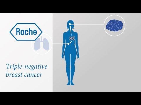 Cancerul afecteaza creierul