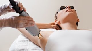 مازيكا تجربتي الشخصية مع الليزر(ازالة الشعر - ممنوع الرجال)!!!!!!! تحميل MP3