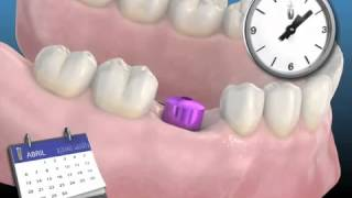 Implantes Dentales - Galindo Dentistas   Clinica Dental en Málaga - Galindo Dentistas