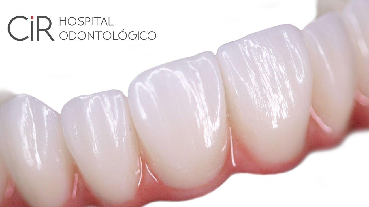 Veja o vídeo sobre Implantes Dentários