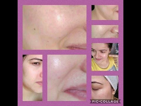 Mask na may lemon whitening facial
