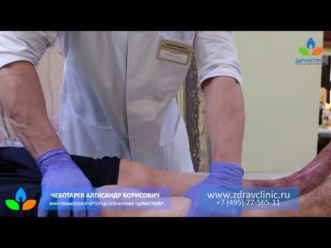 """О лечении артроза коленного сустава - врач сети клиник """"Здравствуй!"""""""