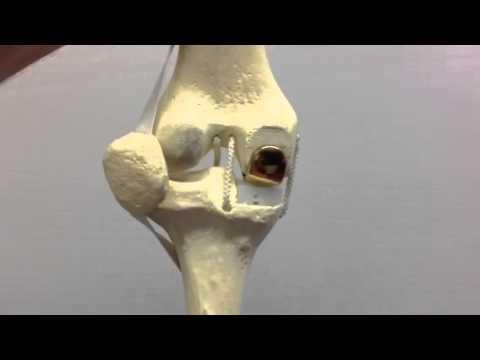 Pomata efficace per il dolore nei muscoli e articolazioni