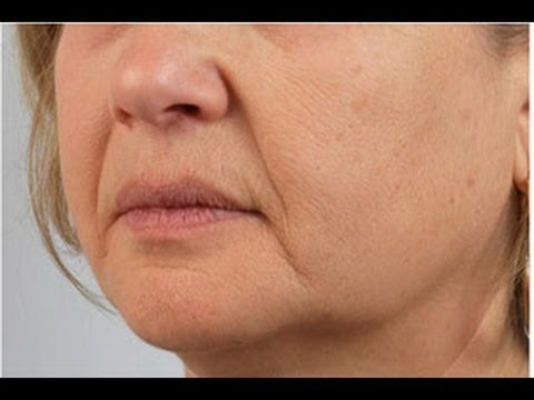 Как ухаживать за лицом после укола ботокс