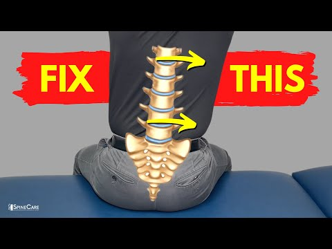5 Exercises to Fix an Achy Tilted Back