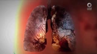 México Social - Incidencia y retos del cáncer en México