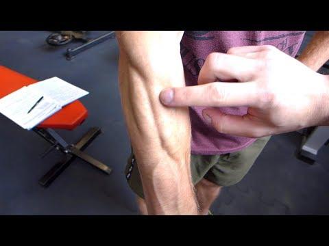 Leczenie kontuzji mięśni nóg