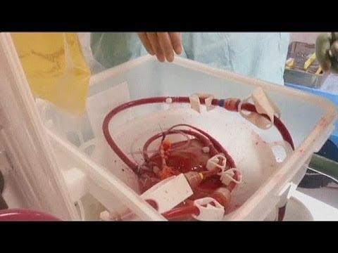 Аппарат искусственного кровообращения для... - science