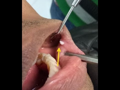 Hpv tongue bumps
